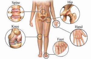 arthritis-affected areas