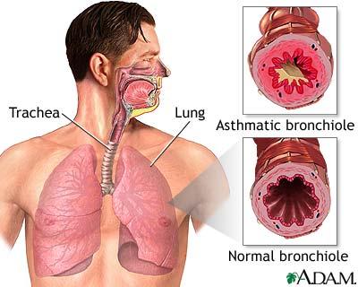 Asthma Full