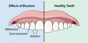 Hypnosis and Bruxism (Teeth Grinding)
