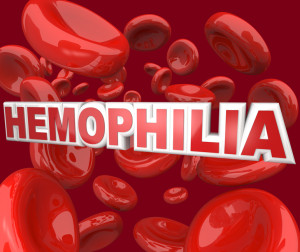 Hypnosis and Control of Bleeding andHaemophilia