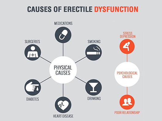 Picture of erectile dysfunction